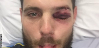 Mitchell McClenaghan to have eye surgery after being hit by ball